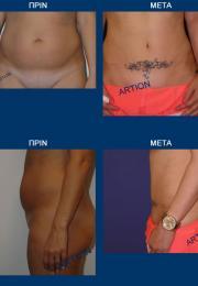 Κοιλιοπλαστική πριν και μετά