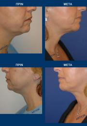 Λαιμός (Neck Lift) πριν και μετά