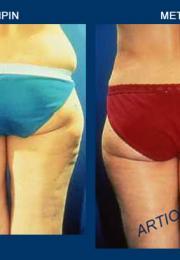 Λιποαναρόφηση πριν και μετά