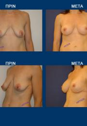 Ανόρθωση Μαστών (Μαστοπηξία) πριν και μετά